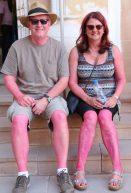 Sunburn or Holi aftermath?